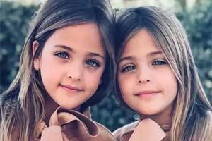 """征服了100万人的心 """"世界上最美的蓝眼睛""""的双胞胎"""
