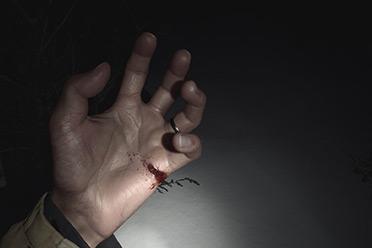 "IGN发布《生化8》伊森手受伤场面:""卡婊""满满恶意!"