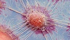 显微镜下的癌细胞竟是这样的!11张神奇的照片
