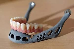 当3D打印技术用在生活 心脏,颌骨,灭霸手套不在话下