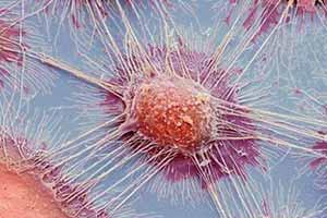 显微镜下的癌细胞竟是这样的!11张照片见证神奇世界