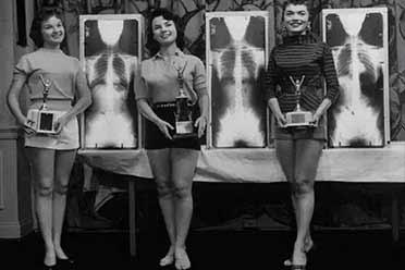 想当选美国小姐得先拍X光片!让人大开眼界的历史照片