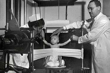 1942年的X光片竟是这样拍摄的!15张珍贵的历史照片