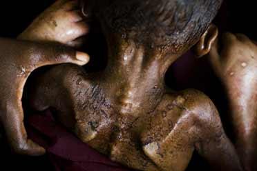 索马里儿童因饥饿在医院死去!17张震撼心灵的照片