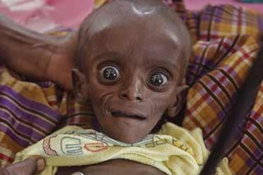 肯尼亚医院孩子的惨状宛如外星人!感动心灵的老照片
