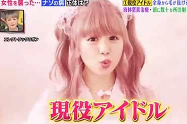 真实仙女头秃?日本16岁女爱豆患罕见病全身毛发掉光