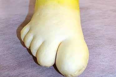 香港脚算什么!见过萝卜脚吗?不可思议的神奇照片
