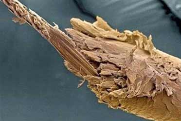 女生的发尾分叉竟宛如枯木!显微镜下事物的神奇照片