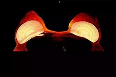 乳房假体居然还会发光!盘点30张稀奇古怪的X光照片