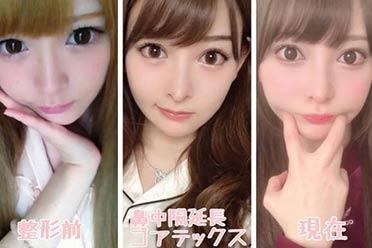 日本网红美女庆幸自己花了1000万整容!引网友热议
