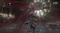 阿仁《血源诅咒老猎人DLC》【1】猎人成灾~娱乐技术流